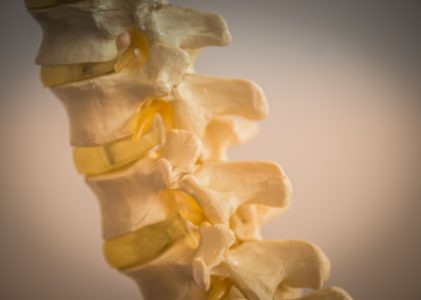 Prolapsed Spinal disc – recovery with BSR